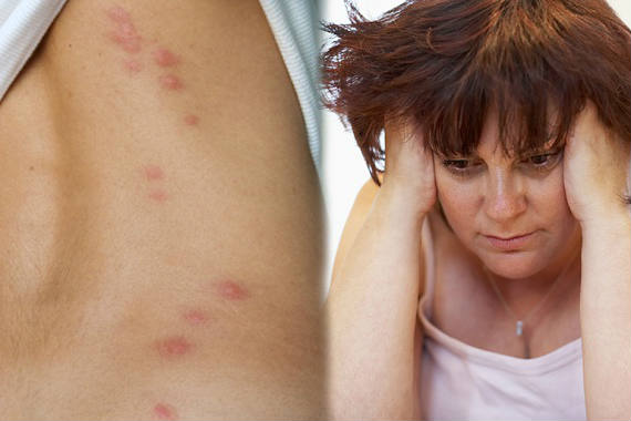 bed bug sting when go to the doctor