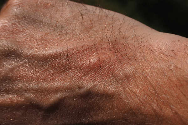 how do you know if it is a mosquito bite