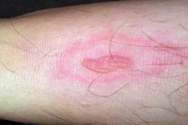 how do you know if it is a spider sting