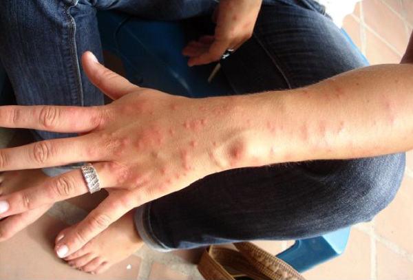 spider bite medical treatment