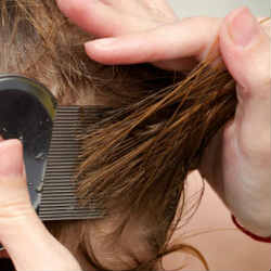 Children with lice a challenge for parents