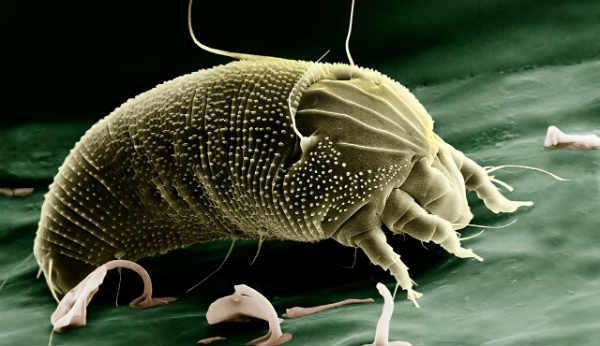 Allergies caused by mites2